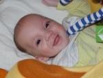 pece o deti  : josifek Mé děťátko bude mít rozštěp
