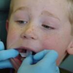 pece o deti  : dite u zubare 150x150 150x150 Vši u dětí